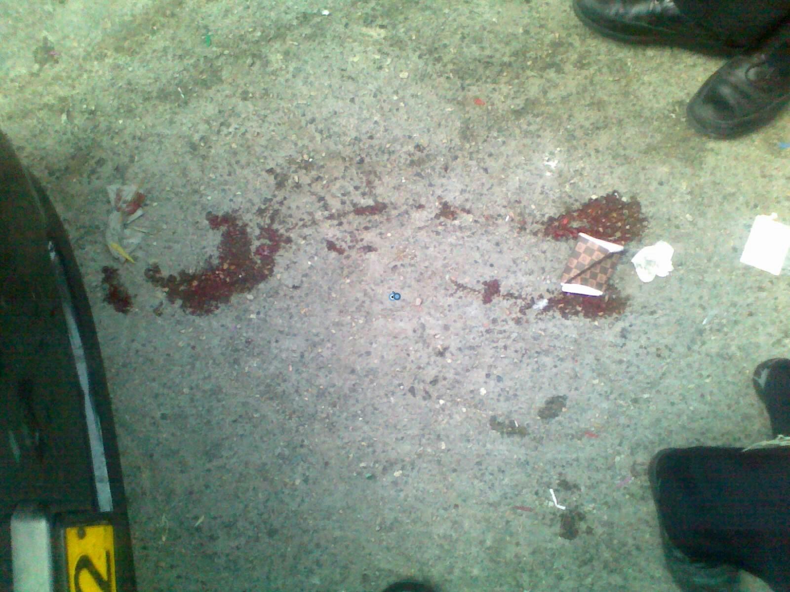 ילד פצוע בינוני מרכב מאה שערים צילם שלמה טרוייבן 24 (1)