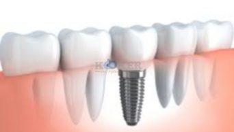 השתלות שיניים בשיטות חדשות